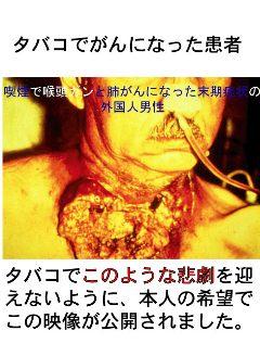 肺がん 末期 症状 肺がん 末期がんの緩和ケア